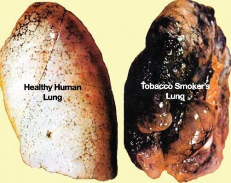 Diagram showing difference between a healthy lung and that of a tobacco smoker