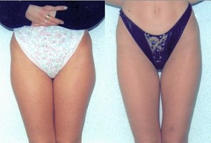 Smartlipo Laser Liposuction Before and After