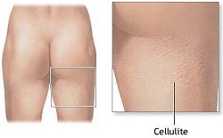 Anti Cellulite Remedies Target Cellulite on the Legs and Thighs